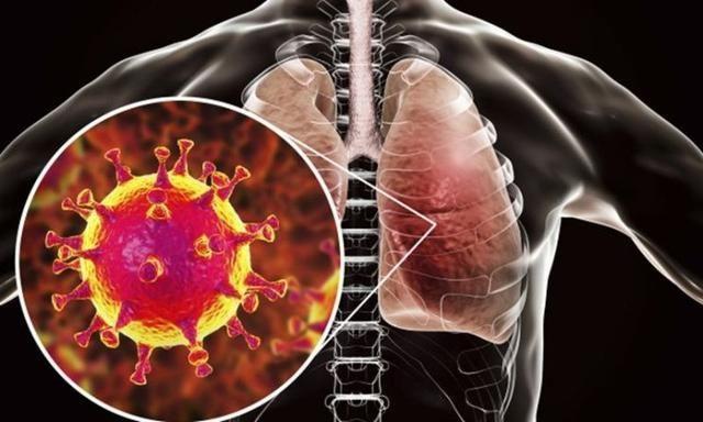 武漢市15名醫務人員確診為新型冠狀病毒感染的肺炎病例